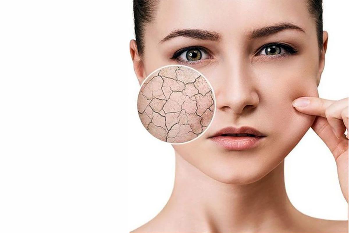 مراقبت پوست خشک